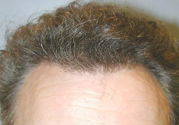 Hair Transplants Toronto