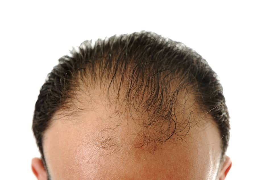 The average cost for a hair transplant pmusecretfo Gallery