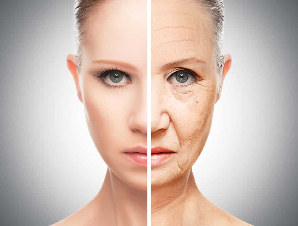 Facelift Surgery -Wrinkle Free Face