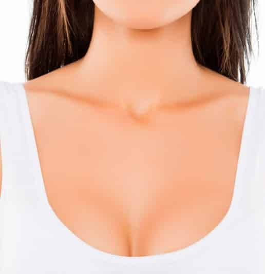 Laser Breast LIft