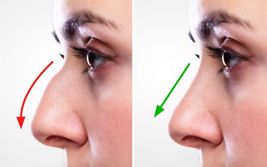 Why Rhinoplasty Before and After Photos Are Helpful *If* You Know What to Look For