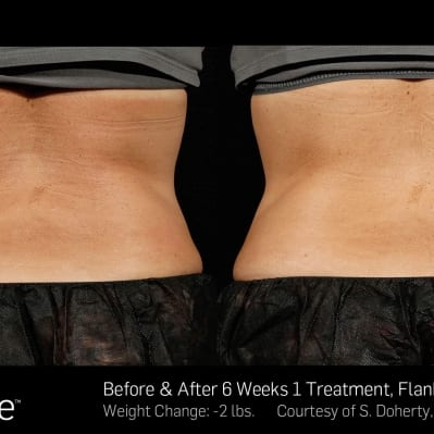 SculpSure 1 - 6 Weeks