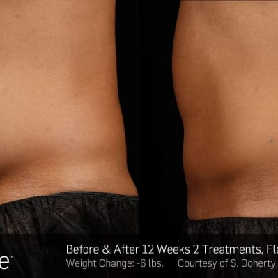 SculpSure 2 - 12 Weeks Flanks & Abdomen