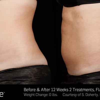 SculpSure 2 - 12 Weeks